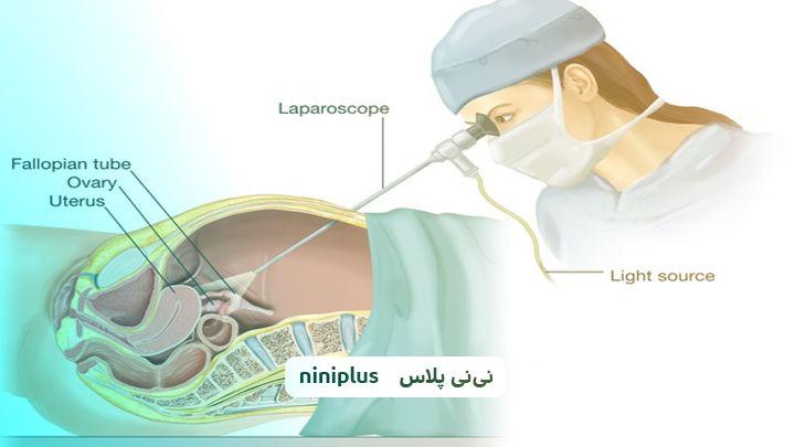 لاپاراسکوپی چیست وچه کاربردی داردو برای چه افرادی ممنوع است؟