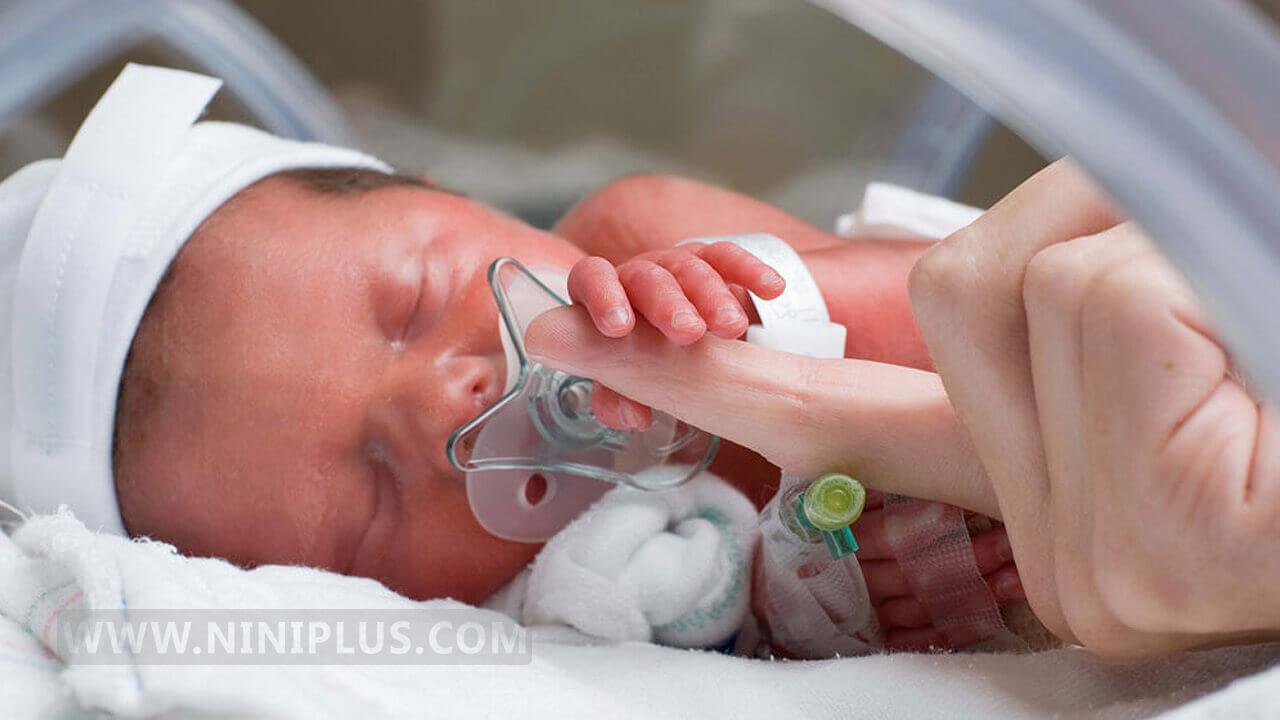 نوزاد نارس چه مشخصاتی دارد؟ نکاتی برای زردی نوزاد نارس