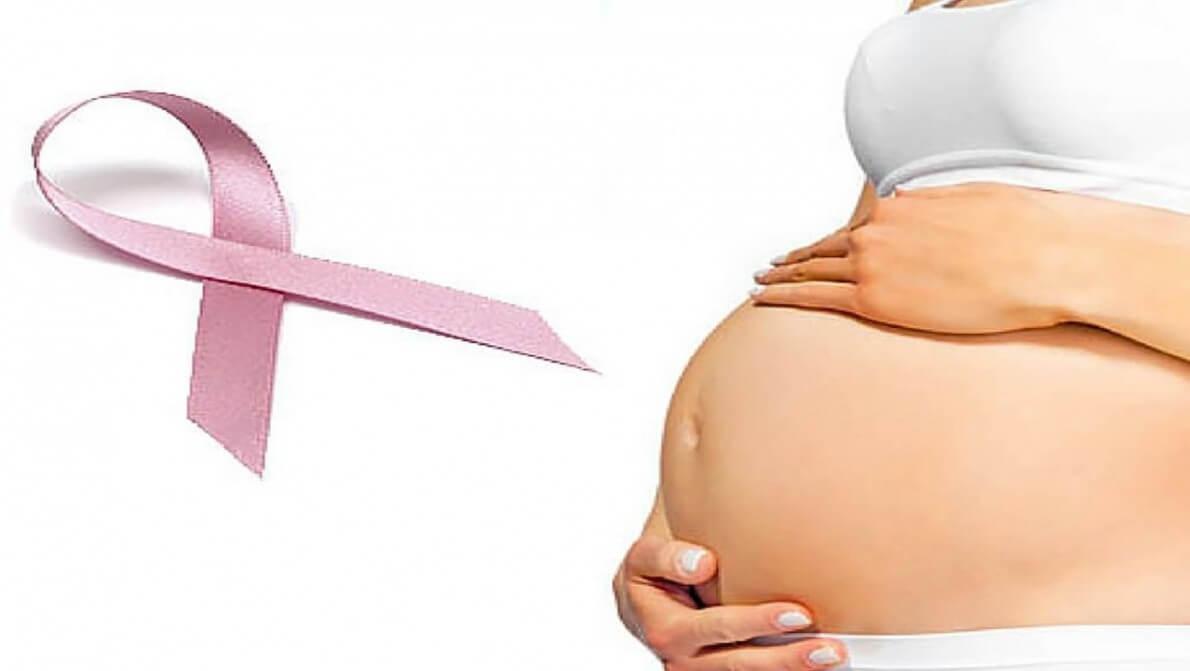 همه چیز درباره سرطان سینه و بارداری نی نی پلاس