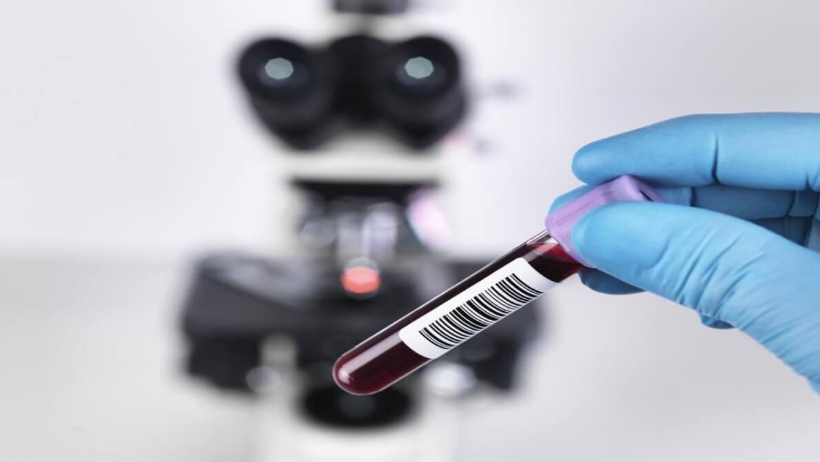 جنسیت جنین با آزمایش خون مشخص می شود نی نی پلاس