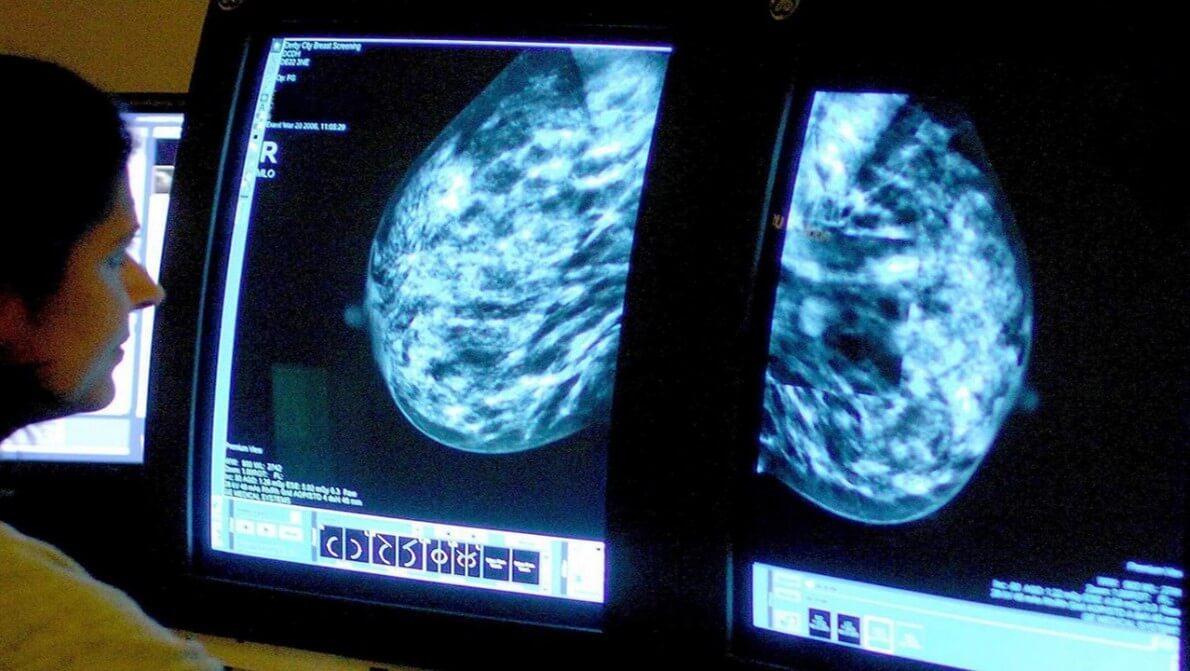 کاهش آمار مرگ سرطانی ها با رژیم غذایی مدیترانه ای  نی نی پلاس