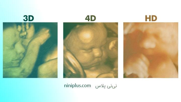 سونوگرافی چهار بعدی چیست و چه زمانی انجام می شود؟