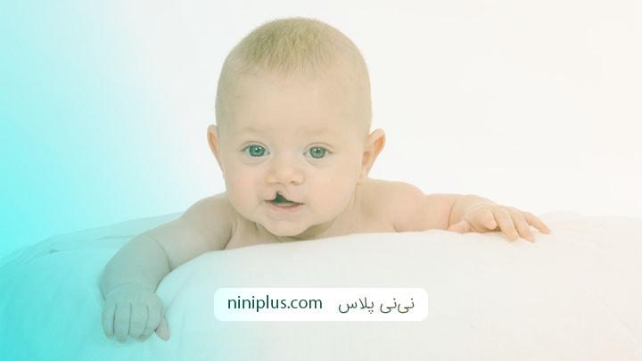 همه چیز درمورد نوزادان لب شکری و کام شکری