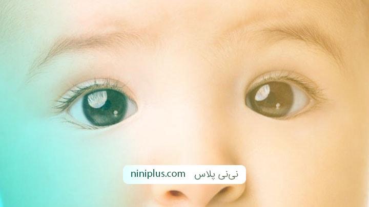 شناخت انواع روش های درمان انحراف چشم نوزاد