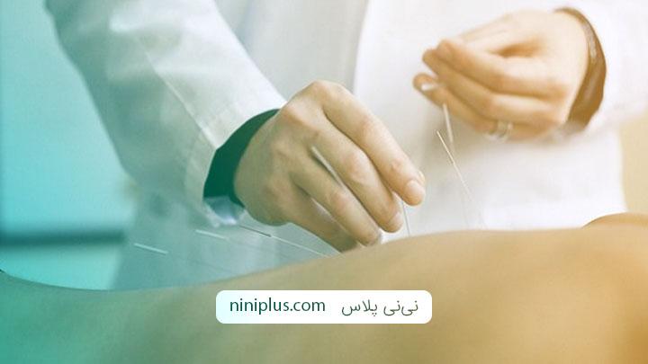 فواید و عوارض طب سوزنی در دوران بارداری