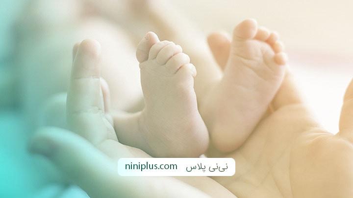 تشخیص و درمان عارضه پاچنبری یا کلاب فوت در نوزادان