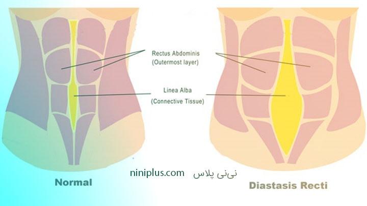 پیشگیری از جدا شدگی ماهیچه های شکمی و روش های درمان آن