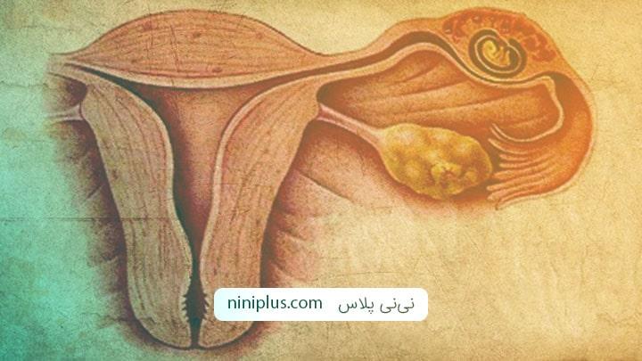 حاملگی نابجا چیست و چه علائم و درمانی دارد؟