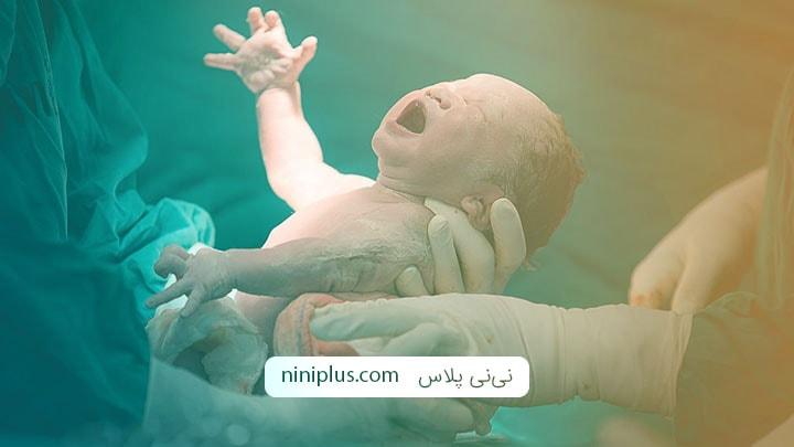 تاثیر روش های مختلف زایمان بر روند شیردهی نوزاد