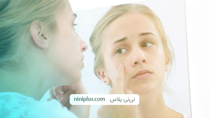درمان جوش در بارداری با محلول اریترومایسین و کلیندامایسین