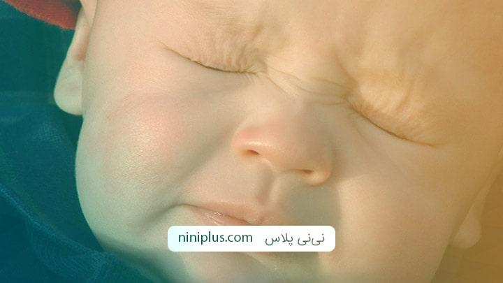 نشانه های حساسیت نوزاد به غذاهای تند و پر ادویه