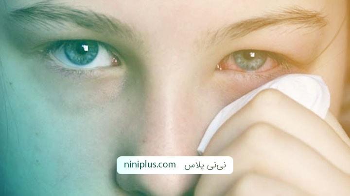 التهاب ملتحمه چشم چیست و چه نشانه ها و درمانی دارد؟