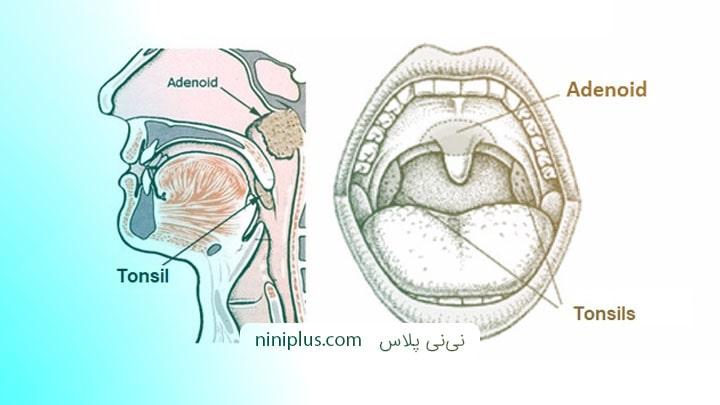 جراحی لوزه سوم یا آدنوئید چه زمانی انجام می شود و چه عوارضی دارد؟