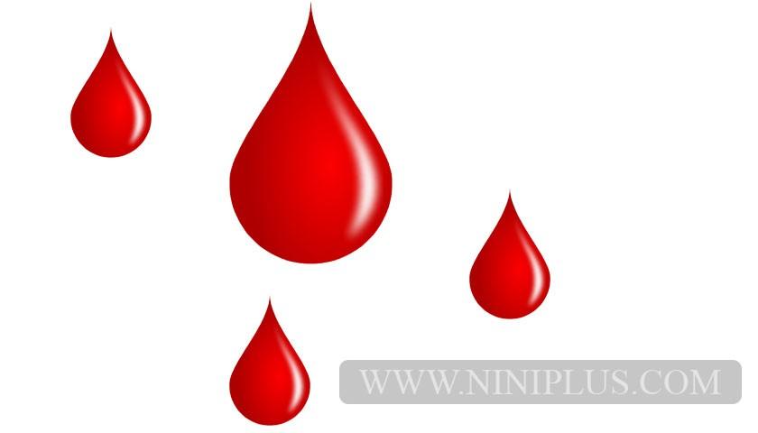 انواع خونریزی (لکه بینی) در بارداری