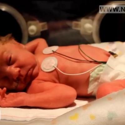 پروتئین شیر مادر نجات بخش نوزادان نارس نی نی پلاس