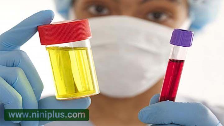 آزمایش خون و ادرار برای تشخیص بارداری