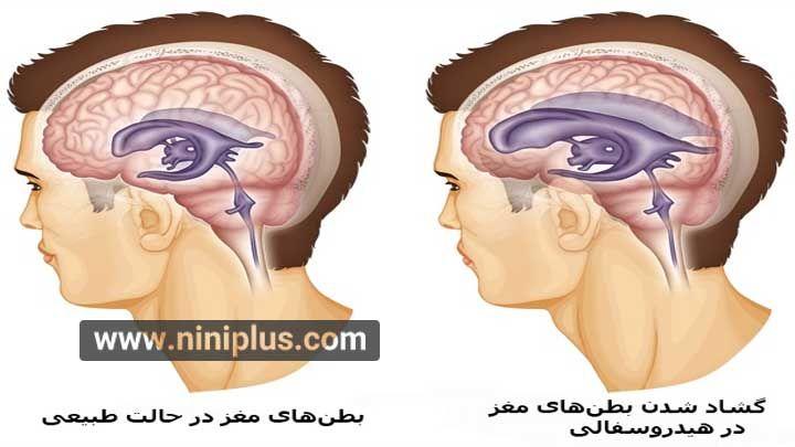 هیدروسفالی، تجمع آب درون مغز