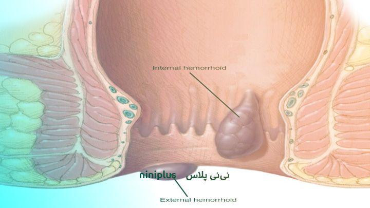هموروئید در بارداری چیست وچه نشانه هایی دارد و علت آن چیست؟