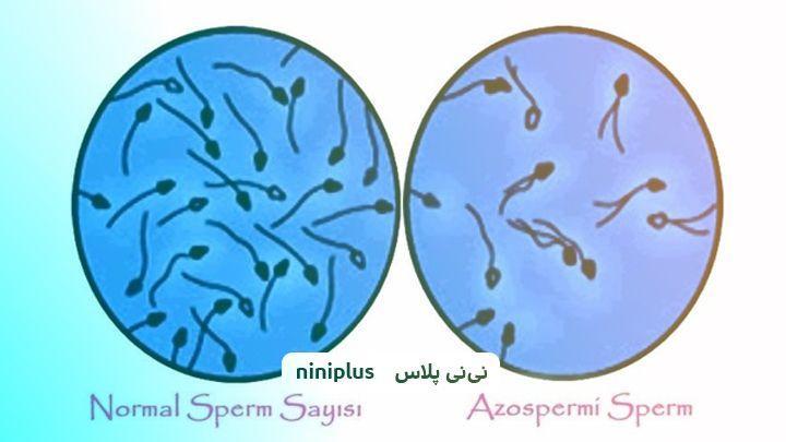 اسپرم صفر و عوامل ایجاد آزواسپرمی یا اسپرم صفر چیست؟