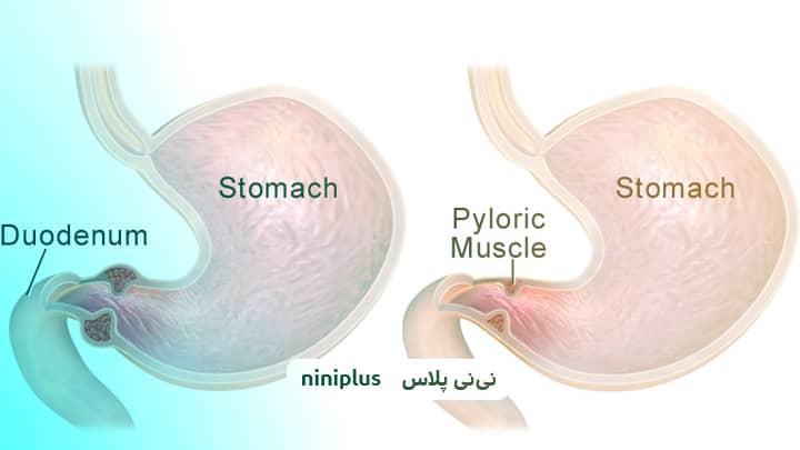 تنگی دریچه پیلور، درمان تنگی خروجی معده در نوزادان چیست؟