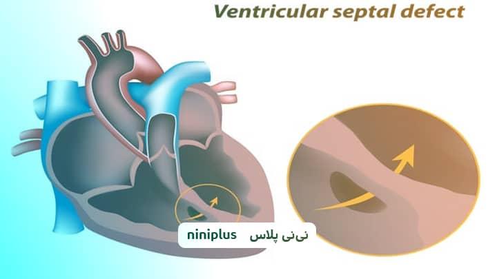 نقص دیواره بین بطنی VSD ، سوراخ بین بطنی قلب نوزاد چیست؟