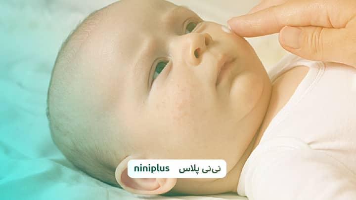 خال عروقی در نوزادان یاهمانژیوم توت فرنگی یابوسه فرشته چیست؟