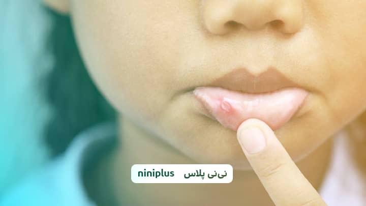 تبخال لب کودکان و درمان تبخال لب کودکان چیست؟