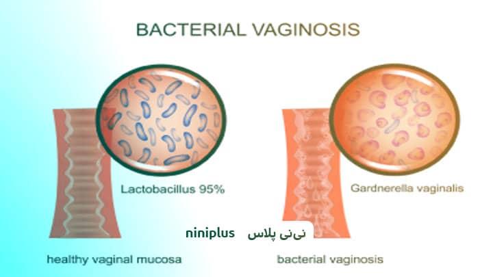 درمان خانگی عفونت باکتریایی واژن آیا تأثیری دارد؟