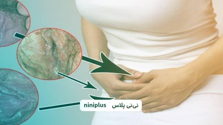 تفاوت عفونت قارچی و باکتریایی واژن چیست؟