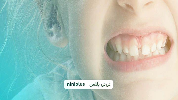 علت دندان قروچه چیست و چه درمانی برای آن وجود دارد؟
