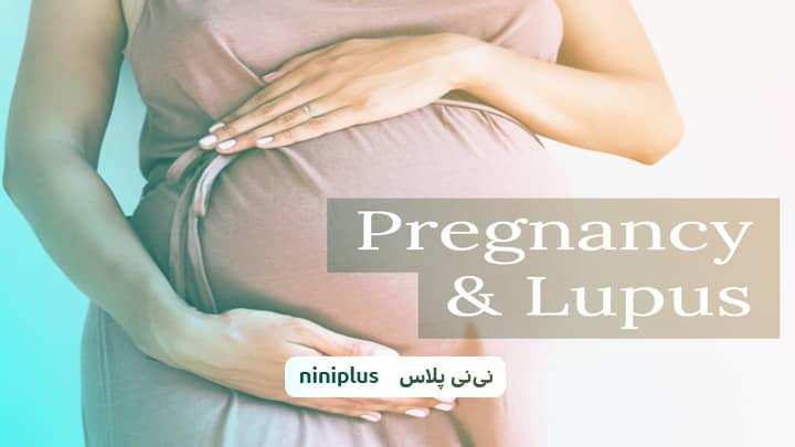 لوپوس در بارداری ، علائم بیماری لوپوس در بارداری چیست؟