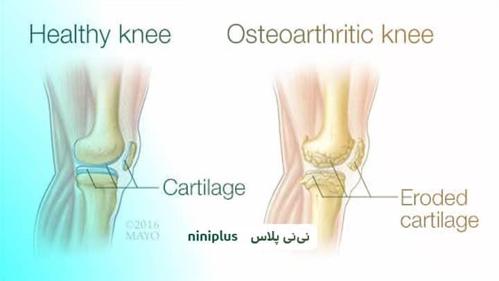 پیوند استخوان چگونه انجام می شود و چه خطراتی دارد؟