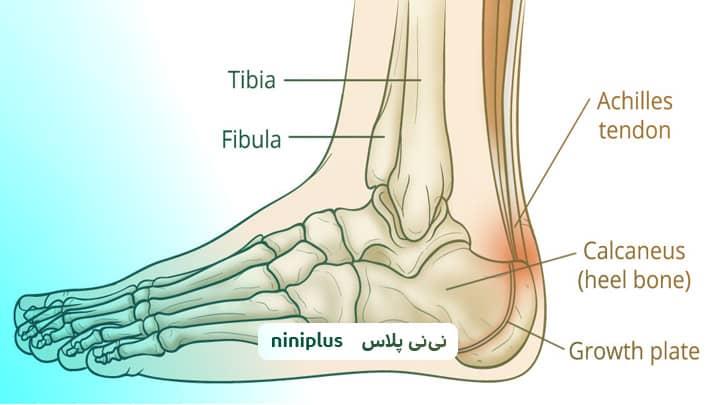 بیماری سیور ، آپوفیزیت، علت درد پاشنه پا در کودکان چیست؟