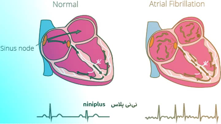 نقص کانال دهلیزی بطنی و علائم نقص کانال دهلیزی بطنی چیست؟