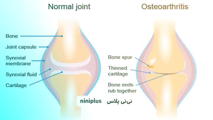 ورم مغز استخوان چیست و چگونه درمان می شود؟