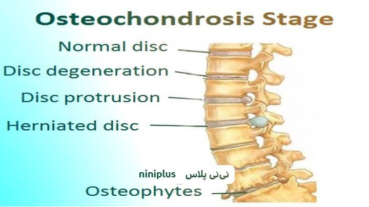 استئوكندروز و علائم بیماری استئوکندروز چیست؟
