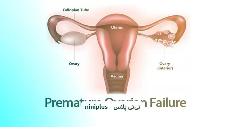 نارسایی تخمدان و نارسایی اولیه تخمدان چه علائمی دارد؟