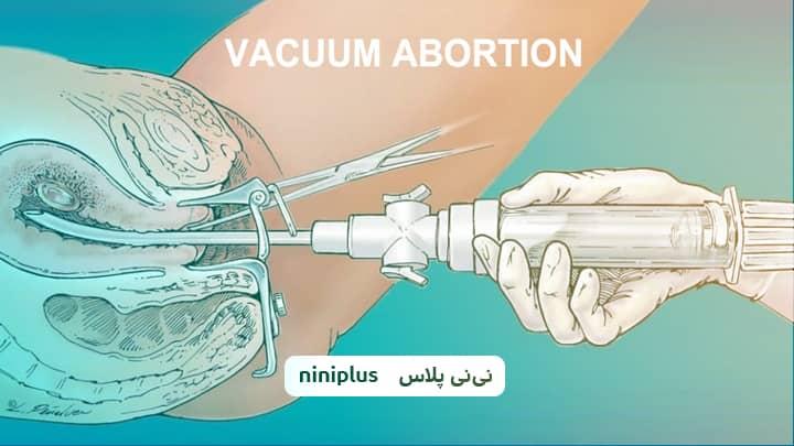 آیا استفاده از ساکشن برای سقط جنین درد دارد؟