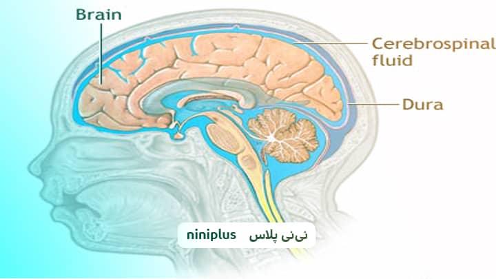 ونتریکولومگالی یا بزرگ شدن بطن های مغز به چه علت است؟
