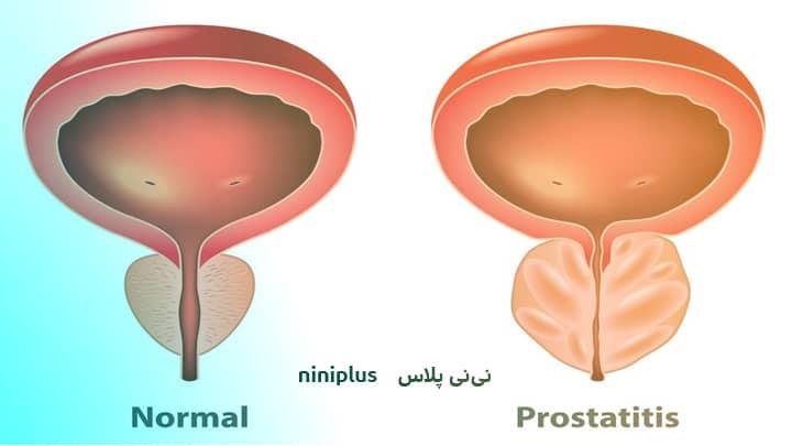 پروستاتیت مزمن باکتریایی وعلت پروستاتیت مزمن باکتریایی چیست؟