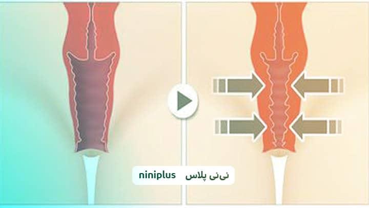 شلی واژن و چگونه عضلات واژن خود را تقویت کنیم؟