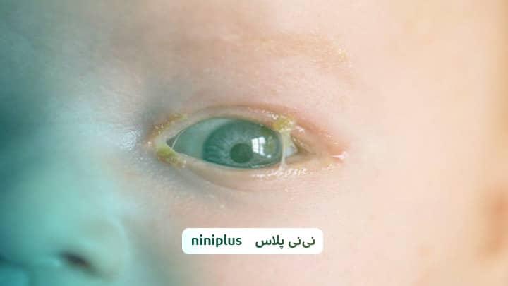 درمان قی چشم نوزاد با چای یا شیر مادر؟ راه حل چیست؟