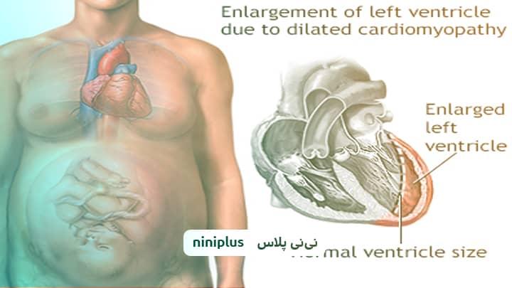 کاردیومیوپاتی پریپارتوم (بیماری ماهیچه قلب در بارداری) چیست؟