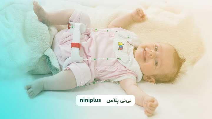 دررفتگی مادرزادی لگن نوزاد از علت تا علائم و روش پیشگیری