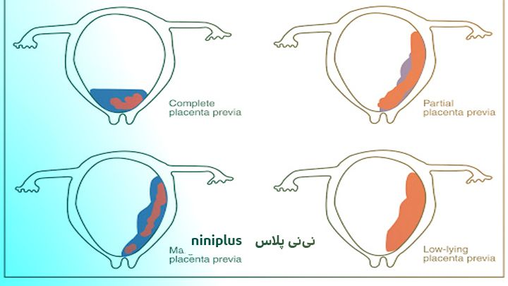 انواع جفت در بارداری ومحل جفت در بارداری چگونه تعیین می شود؟