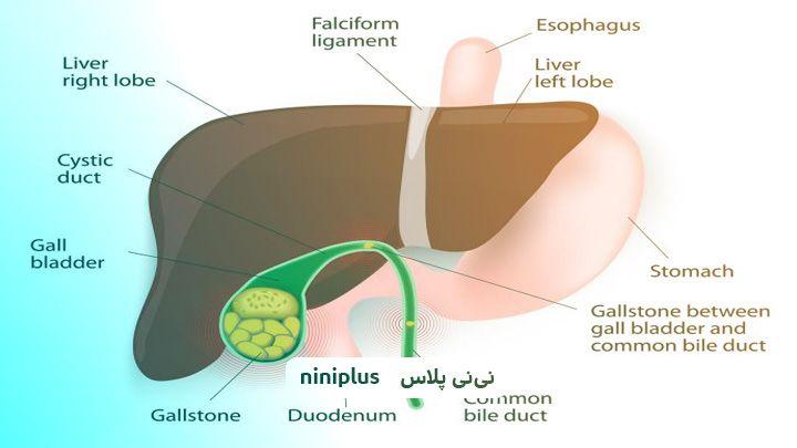 درمان سنگ صفرا در بارداری و عوامل تشدید کننده سنگ کیسه صفرا