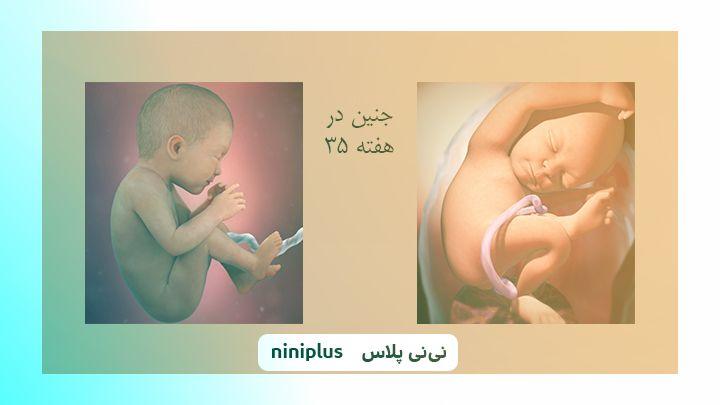 عکس جنین در هفته سی و پنجم بارداری تصویر و اندازه جنین